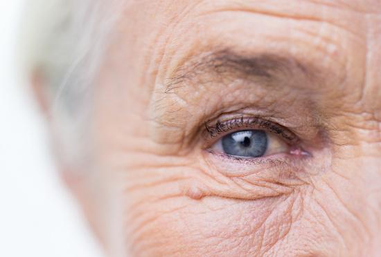 Wrinkles around eye © Syda Productions | dollarphotoclub.com