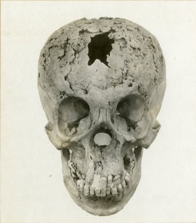 Syphilitic skull. Tertiary syphilis, untreated for almost 27 years. 1910