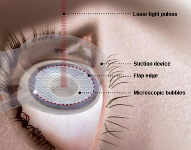 Femtosecond laser cutting a LASIK flap