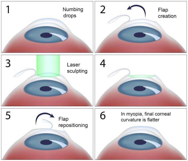 LASIK Refractive Eye Surgery