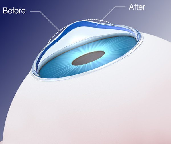 Choosing Presbyopia Treatment At 40 Years Of Age - conductive keratoplasty