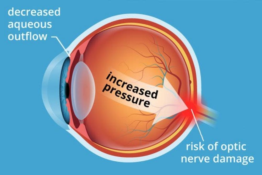 Ocular Hypertension: High Eye Pressure