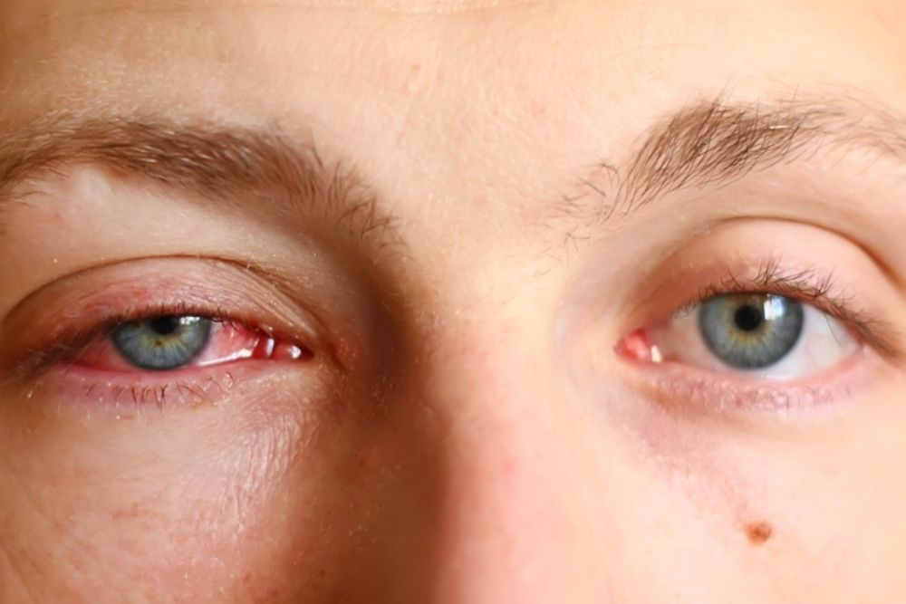 dangers of having a pink eye