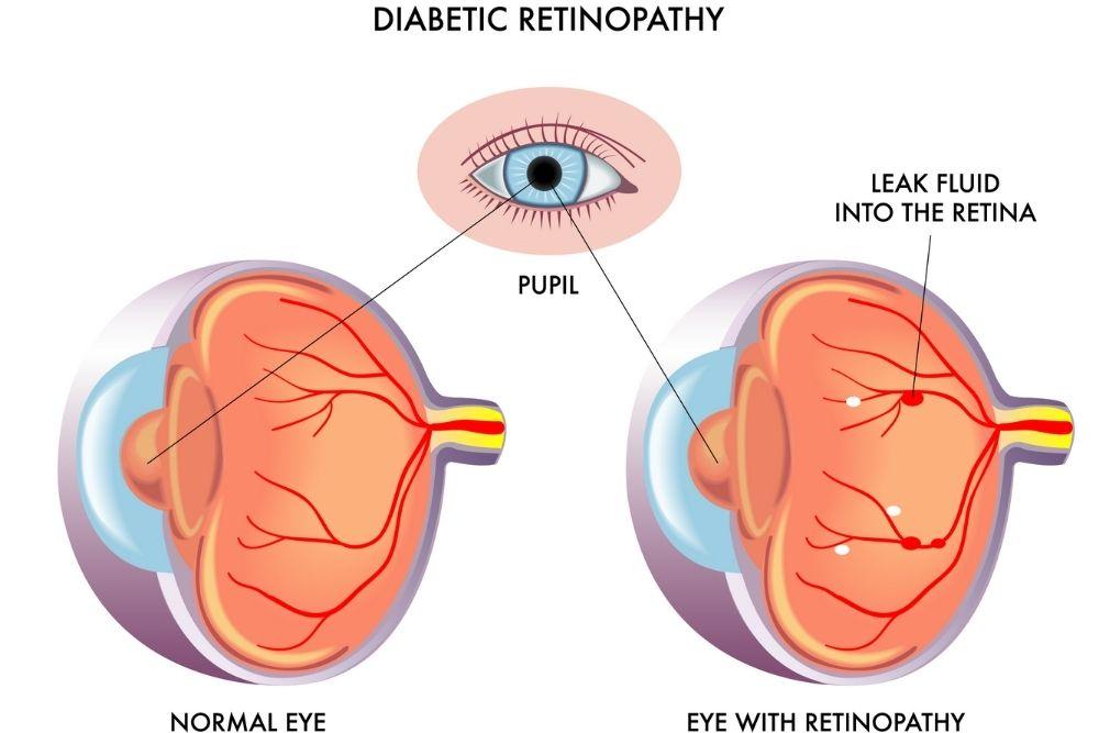 Treatment for Diabetic Retinopathy
