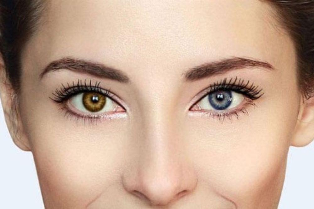 7 strangest eye conditions