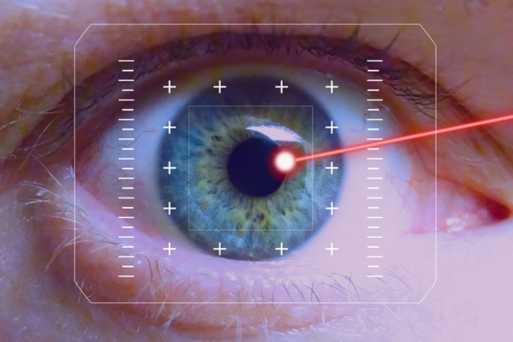 pterygium and lasik