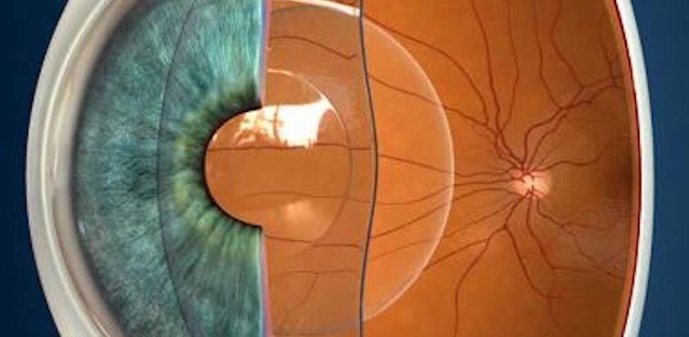 lente intraoculare fachica