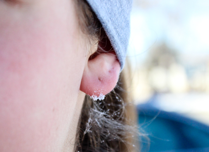 ear ice