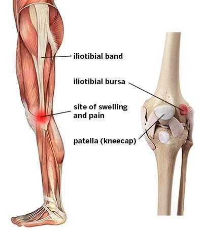 Diagram of leg muscles and bones