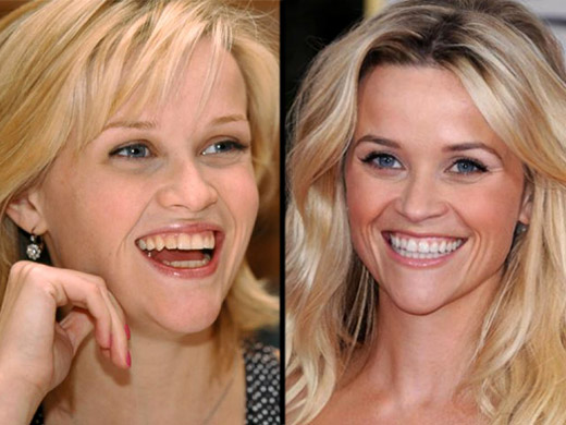 Reese-Witherspoon-clareamento-dental