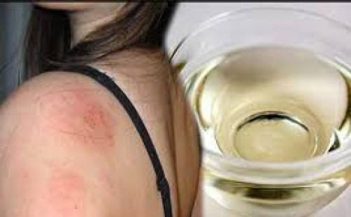 Công dụng của dầu dừa - trị bệnh chàm