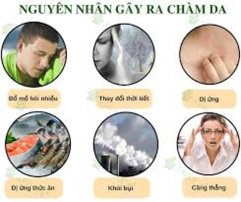 Nguyên nhân gây ra bệnh chàm - eczama