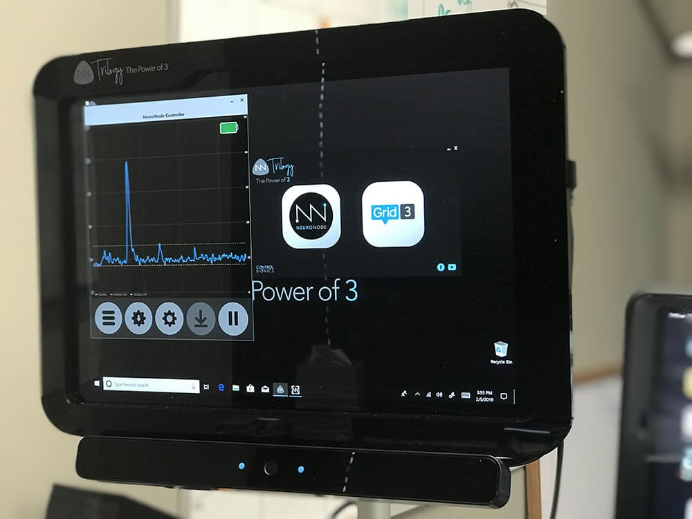Control Bionics NeuroNode image