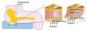 Figure 1. Example of body tissue strains resulting from contact surface stresses when sitting on a cushion. Complex strains are developed inside the cushion as well.