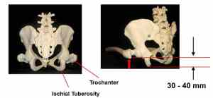 Figure 2. The anatomical relationship between the Ischial Tuberosities and the Trochanters image