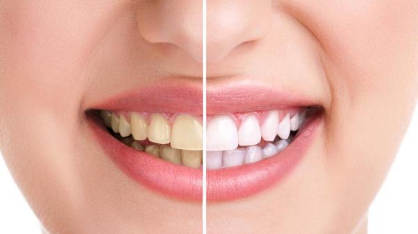 Neglecting Teeth Look Older