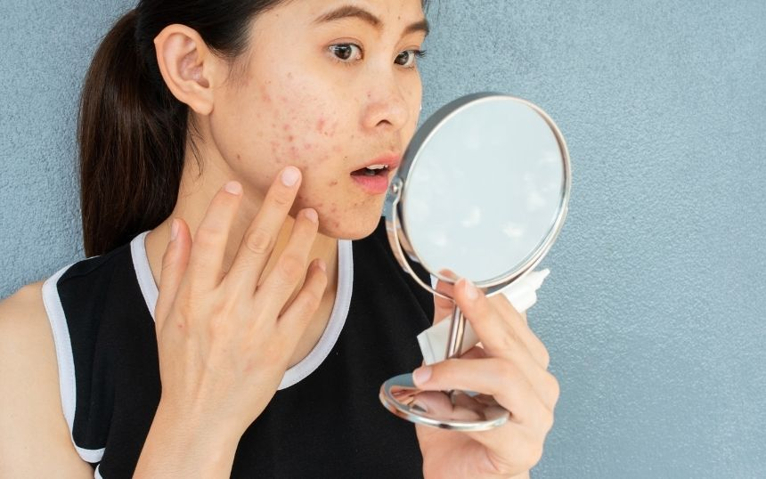 Changing Your Lifestyle: 4 Bad Habits That Damage Your Skin