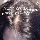 pain clips damage worse hair loss