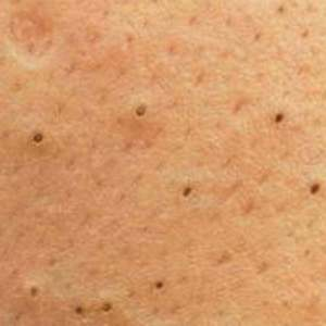 The Problem Of Blackheads, How To Prevent And Remove Them If They Appear ?