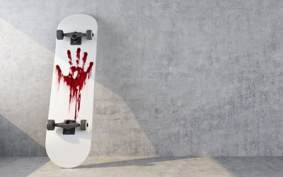 Tony Hawk's Blood Makes for Great Paint