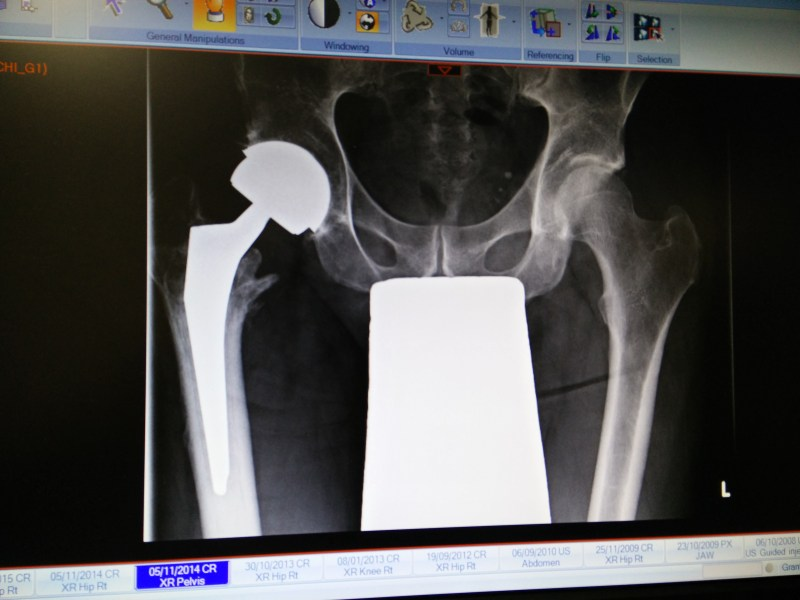 x-ray of hip replacement