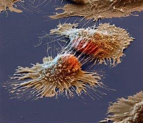 Des cellules cancéreuses sous un microscope électronique