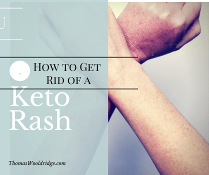 Keto Rash – what is it and how to get rid of it