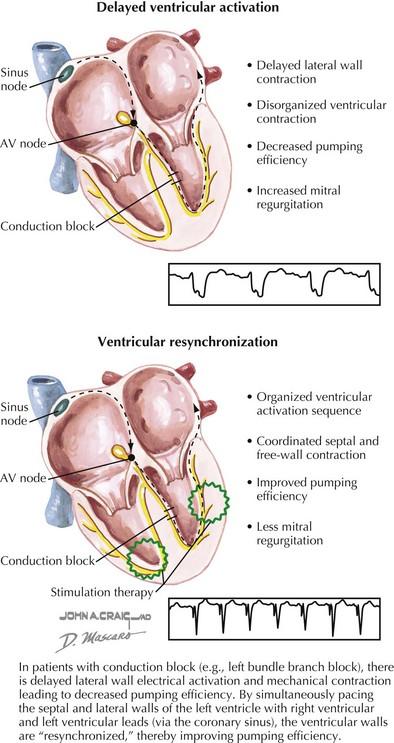 biventricular pacing for atrioventricular block and - 394×743