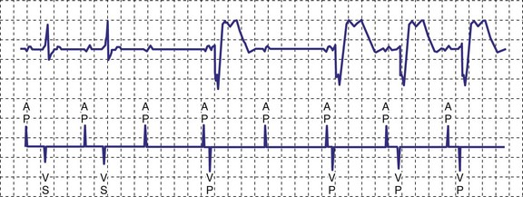 managed ventricular pacing mvp feature medtronic academy - 576×217