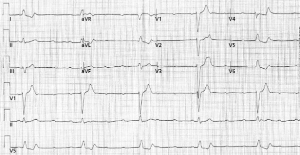 1: Indications for Permanent and Temporary Cardiac Pacing ...