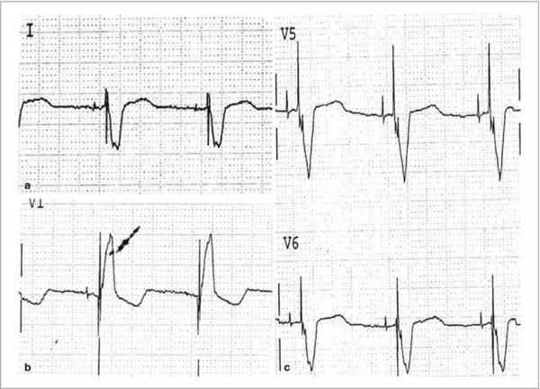 biventricular pacing for atrioventricular block and - 823×593