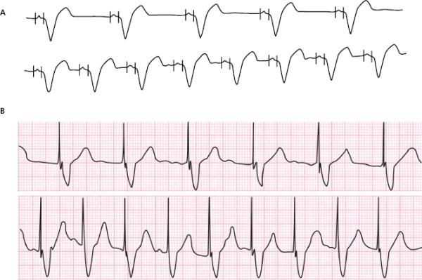 biventricular pacing for atrioventricular block and - 663×441
