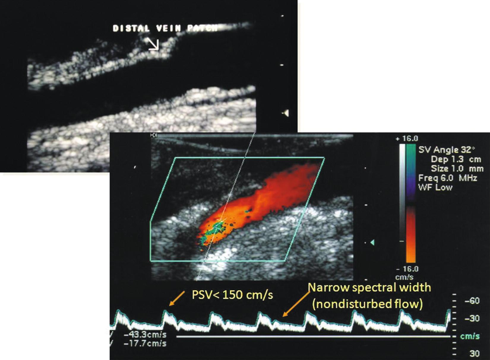 Intraoperative Duplex Evaluation Of Arterial Repairs
