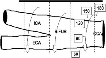 Measuring Carotid Intima-Media Thickness: Extensive