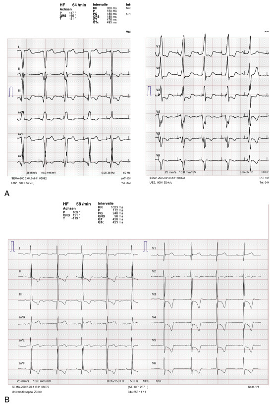 Complex Patients Case 2 Si Dysfunction And