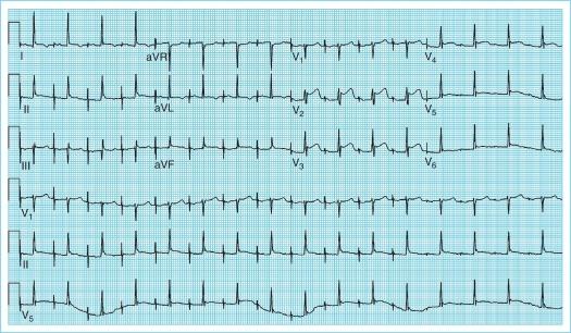 Pacemaker ecg strips ⭐ ECG