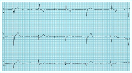 Pacemaker ecg strips ⭐ The Basics