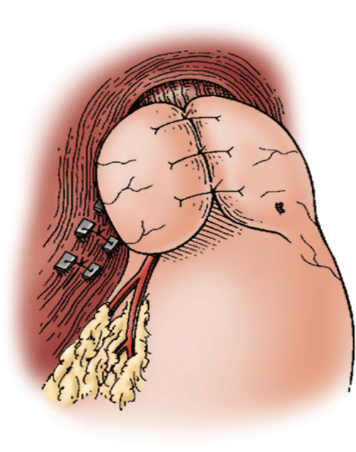 Gastroesophageal Reflux Disease and Esophageal Motility Disorders