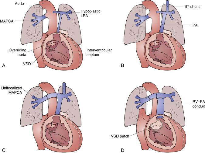 Pulmonary Atresia With Ventricular Septal Defect Thoracic Key