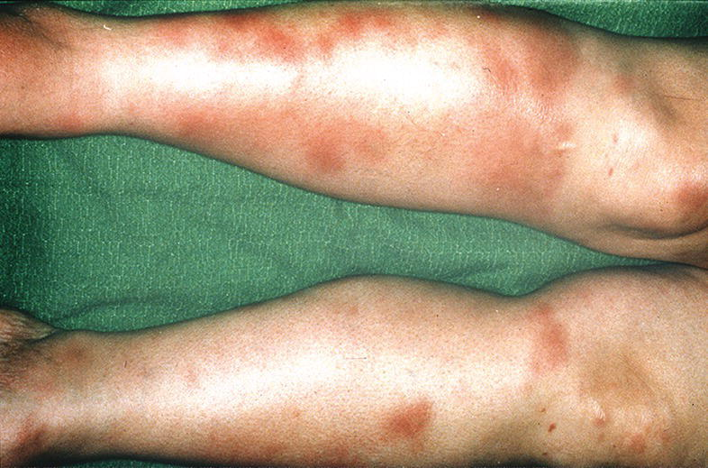Photo of the lower legs with erythema nodosum.