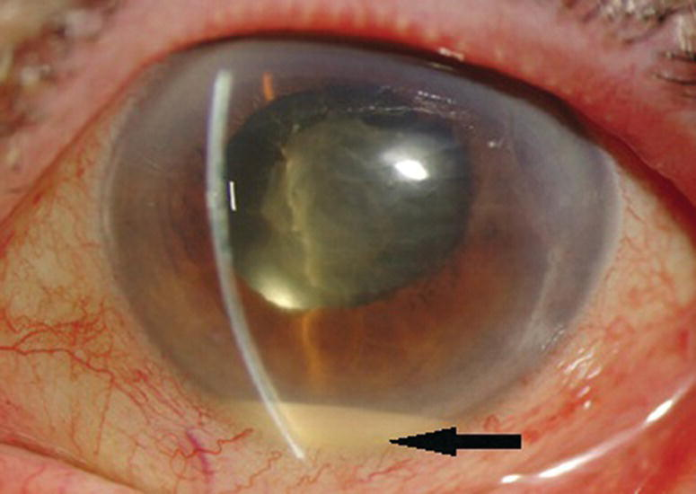Photo displaying close-up view of the eye with anterior uveitis. A leftward arrow is located at the lower area of the iris.