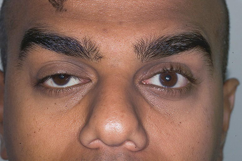 Photo of the upper face of a patient with Horner's syndrome characterized by droopy left eyelid.