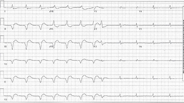 Diagram shows ECH diagnostic criteria of seven beats with accelerated idioventricular rhythm.
