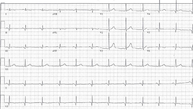 Diagram shows ECH diagnostic criteria of posterior myocardial infarction with waves in V1 and V2 with upright T wave.