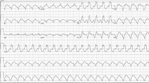 Diagram shows ECH diagnostic criteria of ventricular tachycardia with RBBB morphology.