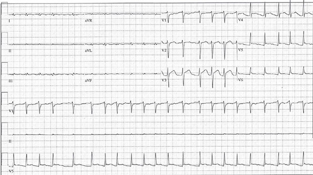Diagram shows ECH diagnostic criteria of atrial fibrillation with rapid ventricular response of low QRS and ST elevation.