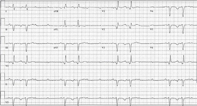 Diagram shows ECH diagnostic criteria of episodes of complete heart block.