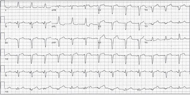 Diagram shows ECH diagnostic criteria of dual-chamber pacer having atrial sensing and V-pacing.