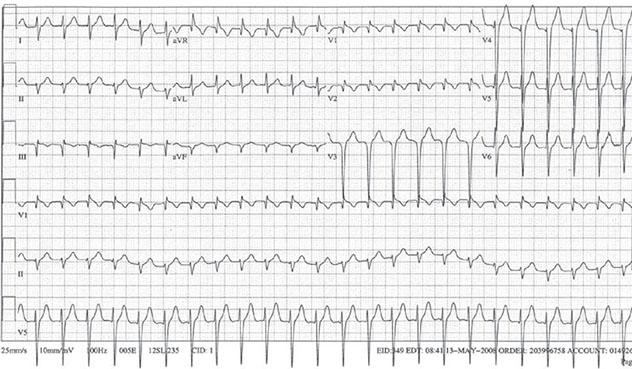 Diagram shows ECH diagnostic criteria of narrow complex regular tachycardia.