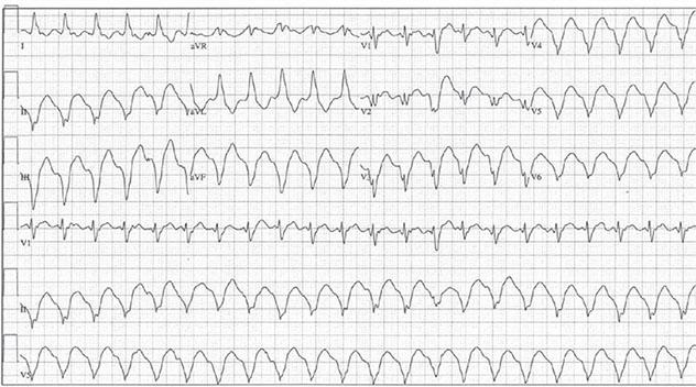 Diagram shows ECH diagnostic criteria of broad complex tachycardia at rate of 140 bpm.